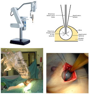 The_technique_of_targeted_intraoperative_radiotherapy_for_breast_cancer